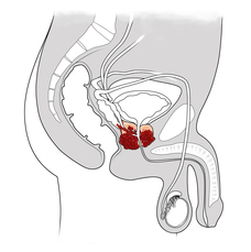 Prostate_Cancer_pic